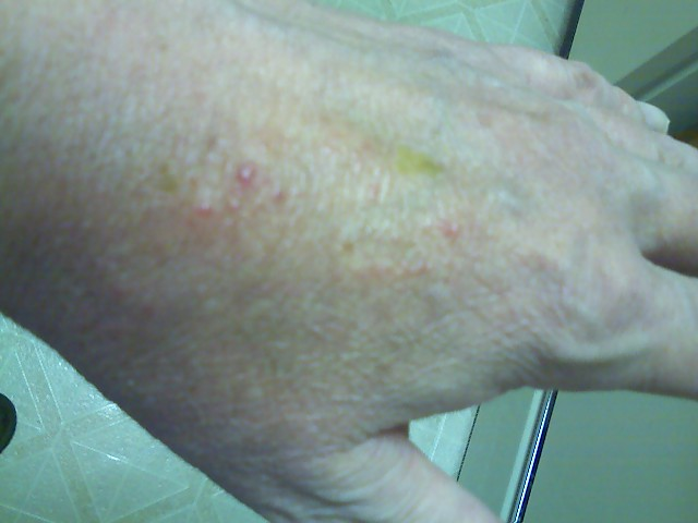 Chemical rash, left hand, likely Corexit poisoning.  The orange color is tincture of iodine.  It started 30 apr 2012